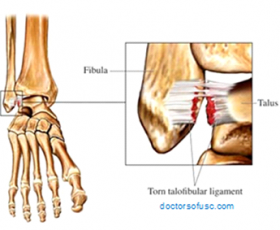 Ankle Injury Treatment & Prevention