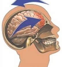 "Concussion: ""Minor Traumatic Brain Injury"""